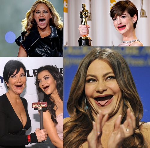 Celebrities with no teeth